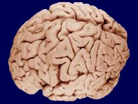 brains of children with ADHD mature later than others